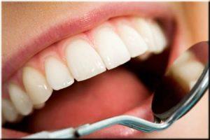 Tratamientos Dentales Guatemala
