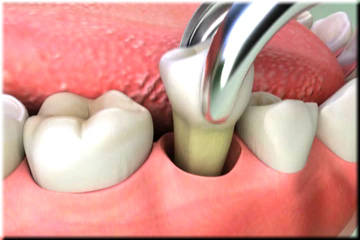 Extraccion Dental Guatemala