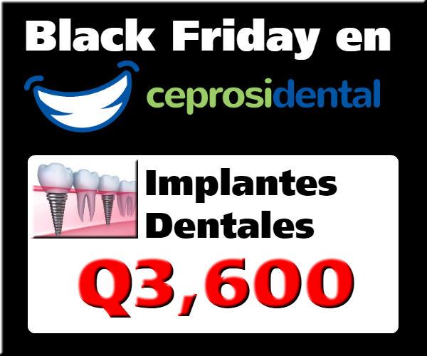 Promoción Black Friday en Implantes Dentales