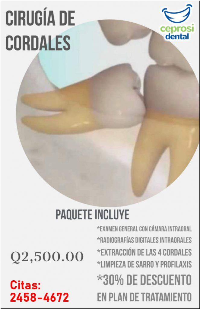 Extracción de Cordales en Ceprosi Dental Guatemala